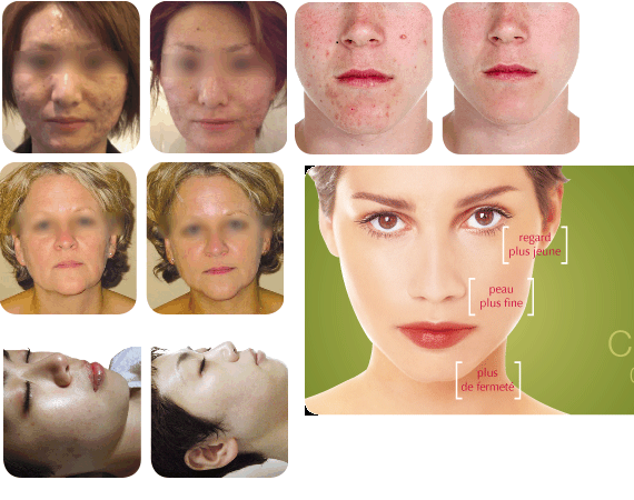 Hi resolution images of biopeel
