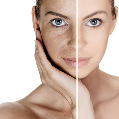 tái tạo làn da