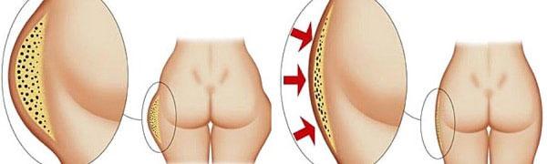 giảm béo cấp tốc an toàn hiệu quả