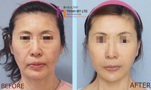 Khách hàng trước và sau liệu trình trẻ hóa da tại Trinh Mỹ