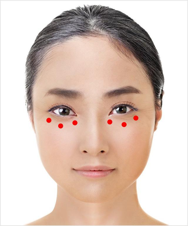 làm căng vùng da dưới mắt